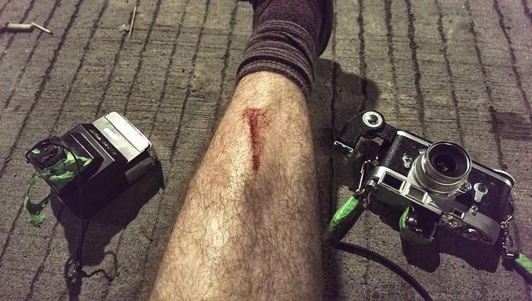 Broken Skin and Broken Camera